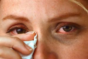allergy eyes