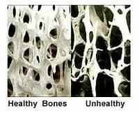 calcium loss