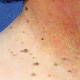skin-tags-on-neck