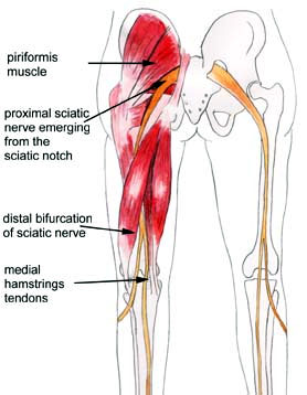 sciatic-pain-image