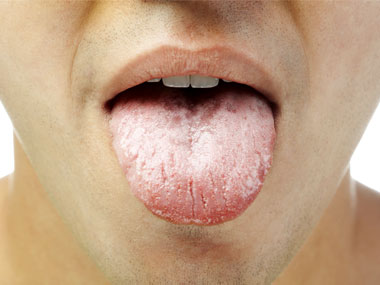 white tonguel