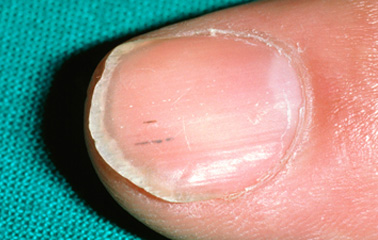 Learn What These 12 Nail Conditions Can Tell You About ...