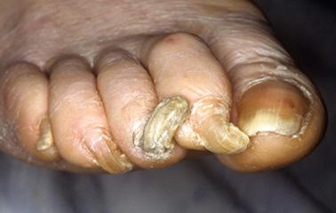 Rams-horn-nails