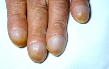 Unusually-curved-nails