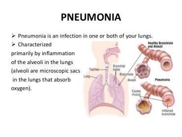 pneumonia-final-ppt-240912-3-638